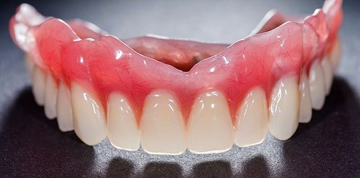 It's cheaper to get dentures than to get implants.