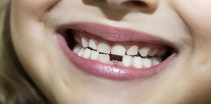 You can be born missing teeth.