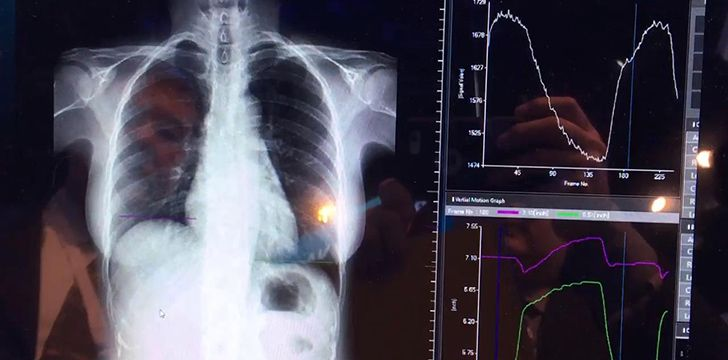 8th November - X-Ray Day.
