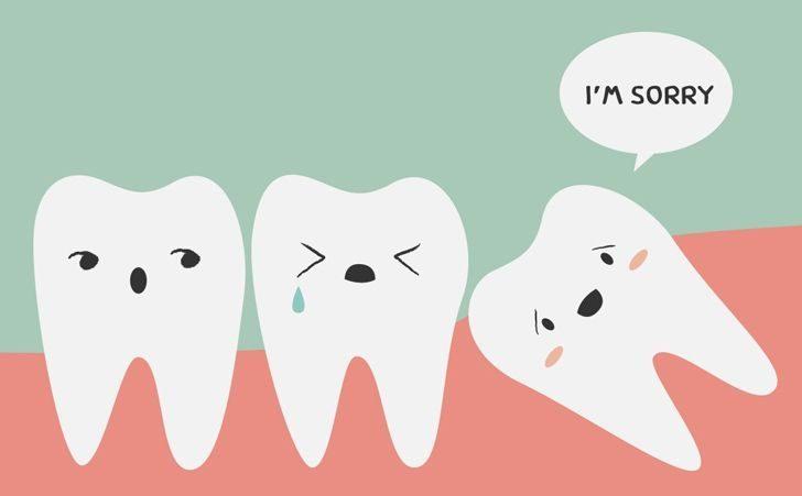Wisdom Teeth Are Useless!