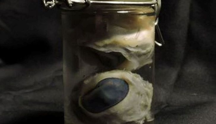 A jar containing two pickled sheep eyes