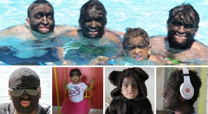 The hairy Gomez family